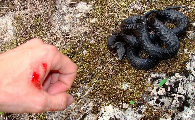 До чого сниться укус змії в руку сонник.