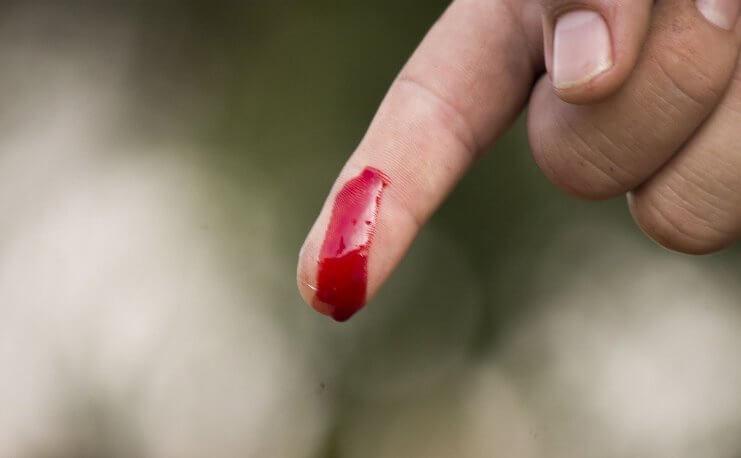 До чого сниться кров трактування.